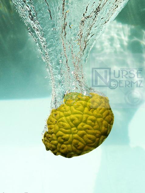 "Nursing Refresher Course: ""Nursing Refreshments for Summer"""